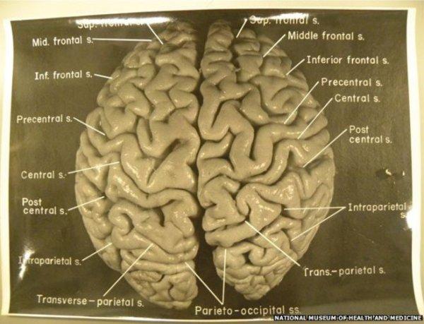 Einstein'ın beyninin trajikomik bir hikayesi var #8